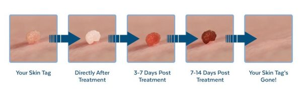 Claritag Easily Remove Skin Tags At Home Skip The Cost Of A Doctor Giveaway Mommies With Cents